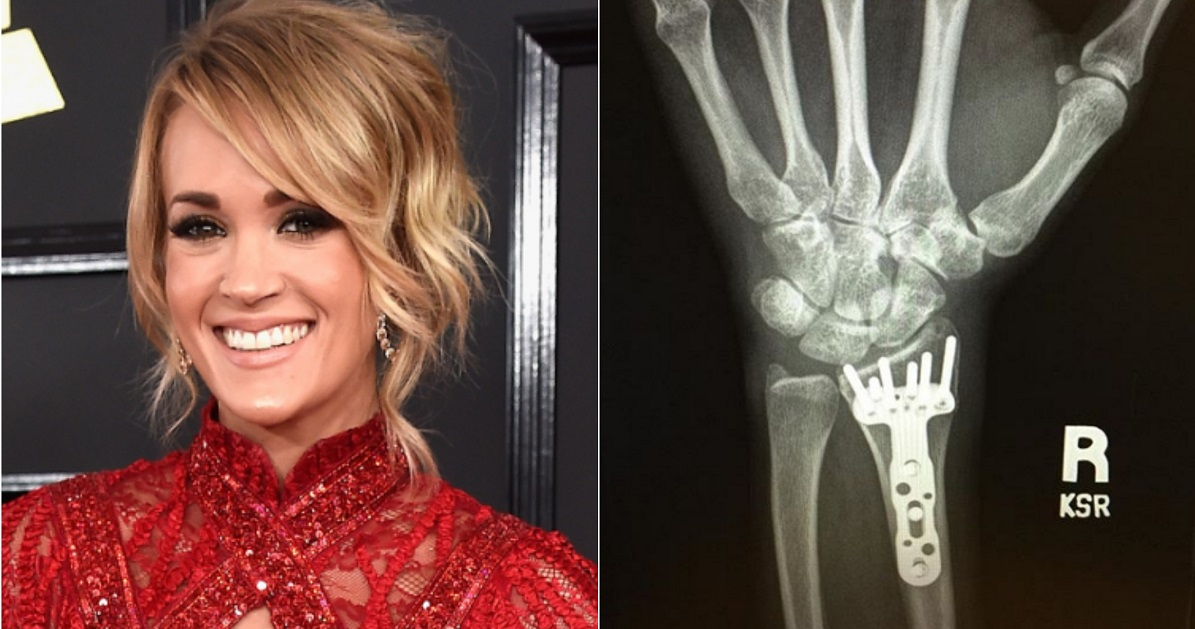 Carrie Underwood Shares Update On Injured Wrist Sounds